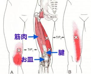 膝痛の原因